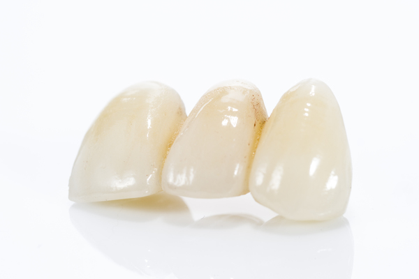 How A Dental Bridge Can Help Replace Missing Teeth